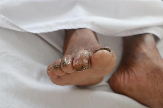 Phát hiện người đàn ông bị nhiễm 'Vi khuẩn ăn thịt người'